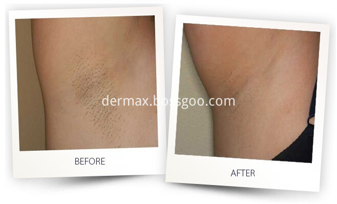 Diode Laser Hair Removal Machine Price